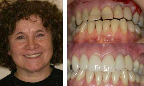 Cosmetic Dentistry Before and After Image - 01