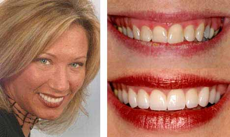 Cosmetic Dentistry Before and After Image - 03
