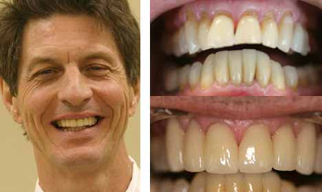Cosmetic Dentistry Before and After Image - 04