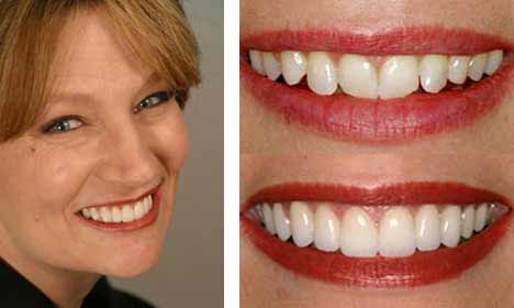 Cosmetic Dentistry Before and After Image - 05