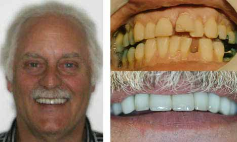 Cosmetic Dentistry Before and After Image - 06