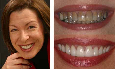 Cosmetic Dentistry Before and After Image - 07