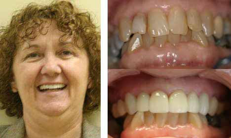 Cosmetic Dentistry Before and After Image - 08