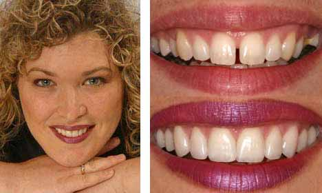 Cosmetic Dentistry Before and After Image - 09