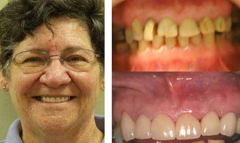 Cosmetic Dentistry Before and After Image - 10