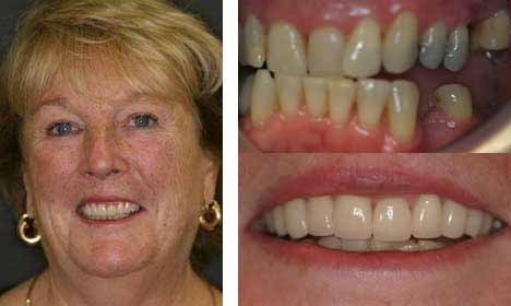 Cosmetic Dentistry Before and After Image - 11