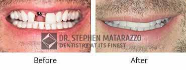 Implant Dentistry Before and After Image - 05