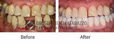 Implant Dentistry Before and After Image - 07