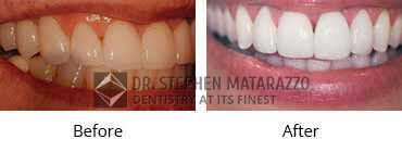 Implant Dentistry Before and After Image - 02