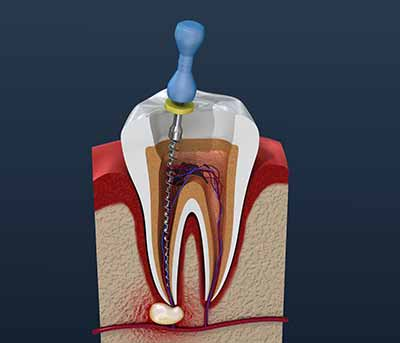 Root canals require that Dr. Matarazzo remove the dental pulp from the tooth, which is done simply and easily in a very short period of time.