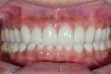 Smile Make-Over Procedure, Quincy Image 02