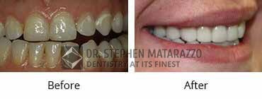 Smile Make Over Before and After Image - 01