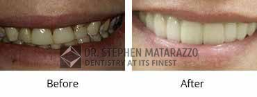 Smile Make Over Before and After Image - 02