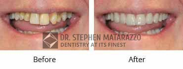 Smile Make Over Before and After Image - 03