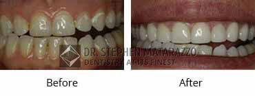 Smile Make Over Before and After Image - 04