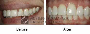 Smile Make Over Before and After Image - 05