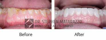 Smile Make Over Before and After Image - 07