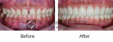 Smile Make Over Before and After Image - 11