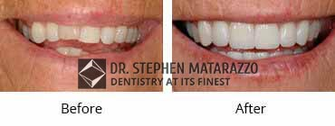 Smile Make Over Before and After Image - 12