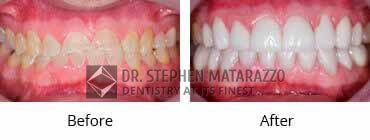 Smile Make Over Before and After Image - 14