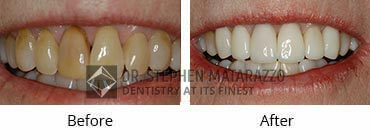 Smile Makeover, Quincy MA - Before And After Image -30