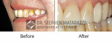 Smile Makeover, Quincy MA - Before And After Image -31
