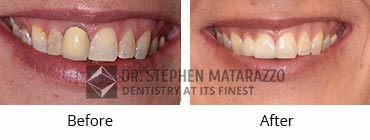 Smile Makeover, Quincy MA - Before And After Image -32