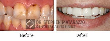 Smile Makeover, Quincy MA - Before And After Image -33