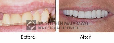 Smile Makeover, Quincy MA - Before And After Image -35