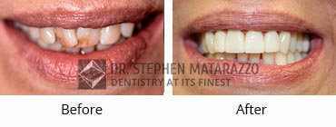 Smile Makeover, Quincy MA - Before And After Image -36