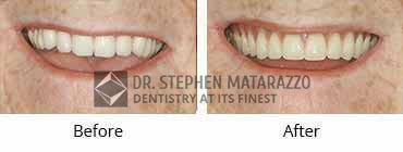 Smile Makeover, Quincy MA - Before And After Image -37