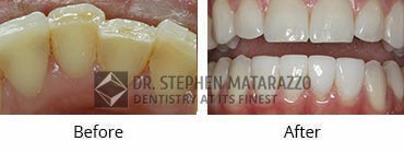 Smile Makeover, Quincy MA - Before And After Image -38