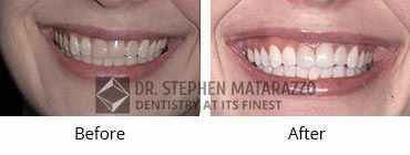 Smile Makeover, Quincy MA - Before And After Image -40