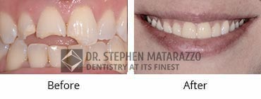 Smile Makeover, Quincy MA - Before And After Image -41