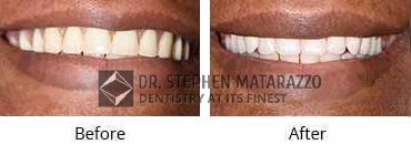 Full Mouth Restoration, Quincy MA - Before and After Image 31