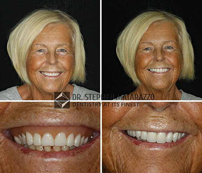 Before & after image - Fountain of youth with full dentures from the Quincy, MA expert