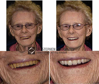Full Dentures - Before and affter image of Anne