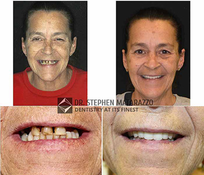 Before & After image - Full dentures in Quincy, MA