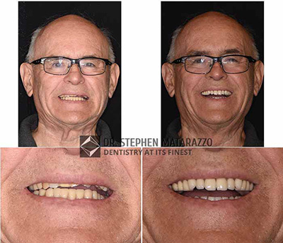 Full Dentures - Before and affter image of Charlie