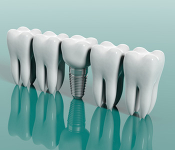 Dental Implants Can Save your Smile in Quincy MA area