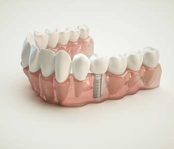Dental Implants near Wall Street area